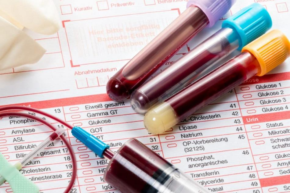 Экспресс анализ крови в москве красногвардейская Сертификат о профилактических прививка Покровское-Стрешнево